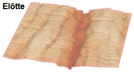 Meso-Vytal bőr előtte