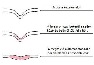 Meso-Vytal Hyaluron feltöltés