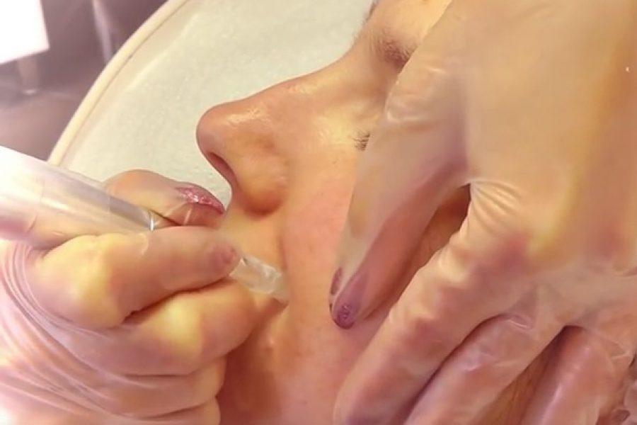Mezoterápiás bőrmegújító kezelés
